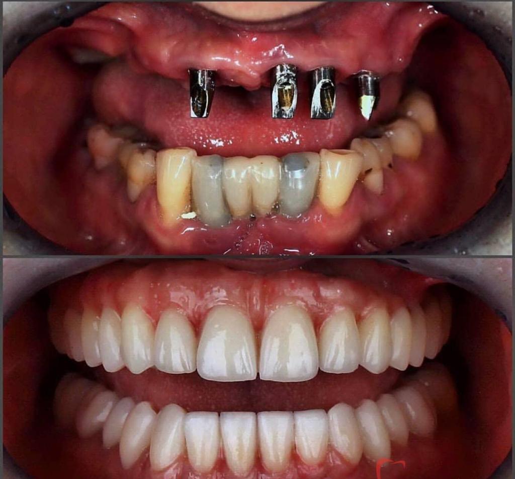 Implant dentaire : qui met en place l'implant dentaire ?